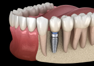 Animated rendering of implant supported dental crown