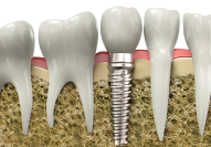 Animation of implant replacement tooth in grafted bone