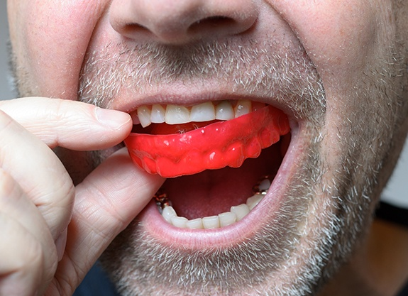 Closeup of man placing athletic mouthguard