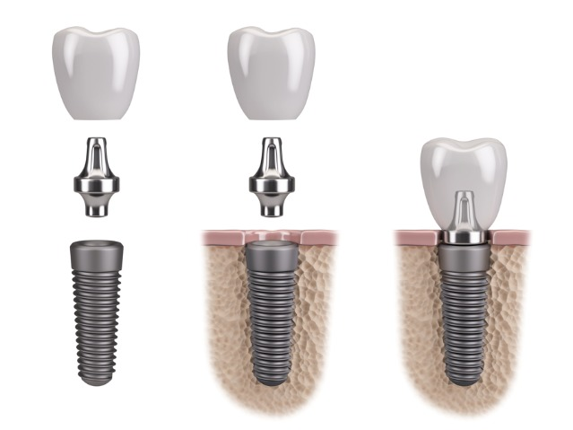 An image of a dental implant, abutment and crown